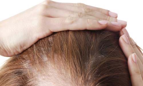 Hair Fall Treatment